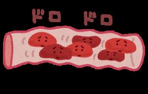 糖尿病と血管