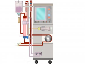 腹膜透析の機械
