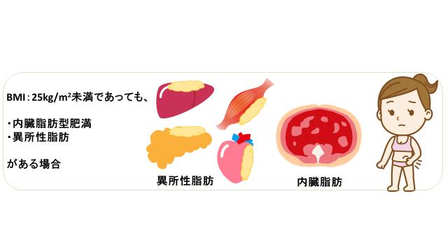 痩せ型糖尿病イラスト