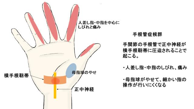 透析アミロイドーシスの症状である手根管症候群